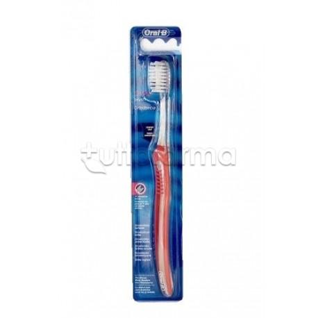 Oral-B Spazzolino Ortodontico Con Setole a V B11650